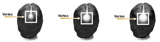 Vertex Image