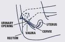 Miconazole Image 3