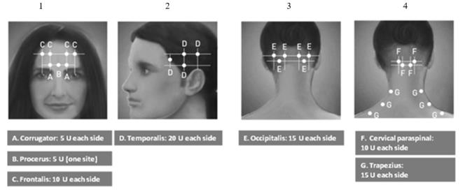 Diagrams 1-4: Recommended Injection Sites (A through G) for Chronic Migraine