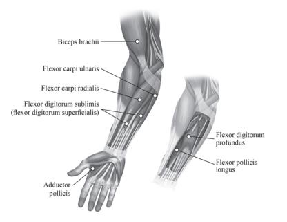 Figure 2: Injection Sites for Upper Limb Spasticity