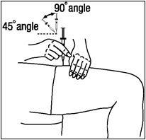 Figure R