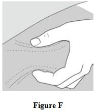 Instructions for Use Figure F