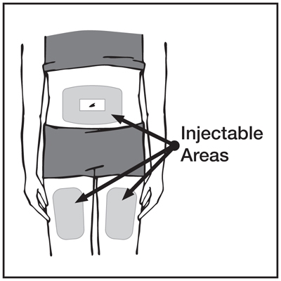 Injectable Areas