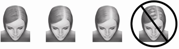 hair loss image