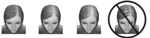 minoxidil_head_images.jpg