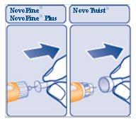 Figure I: Injection sites