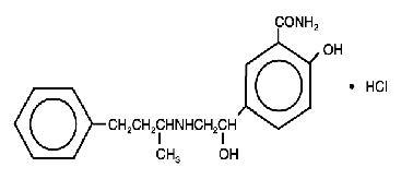 Labetalol structural formula