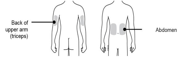 Choose the patient's injection site.